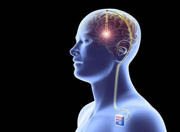 Electrical brain implant