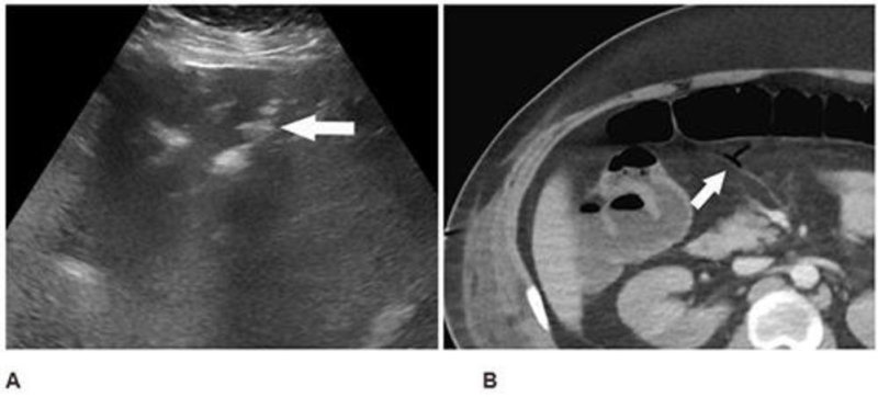 Figure 4. Abdominal ultrasound (A) performed for elevated liver enzymes in a 34-year-old man incidentally noted peripheral echogenic branching foci (arrow) with dirty shadowing (*), in keeping with portal venous gas. Subsequent CT abdomen and pelvis with IV contrast (B) confirmed portal venous gas and demonstrated gas in the transverse mesocolon vasculature (arrow). At laparotomy, patchy areas of yellow discoloration were identified on the antimesenteric aspect of the transverse colon of uncertain etiology.
