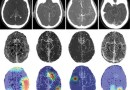 Deep learning enables rapid detection of stroke-causing blockages