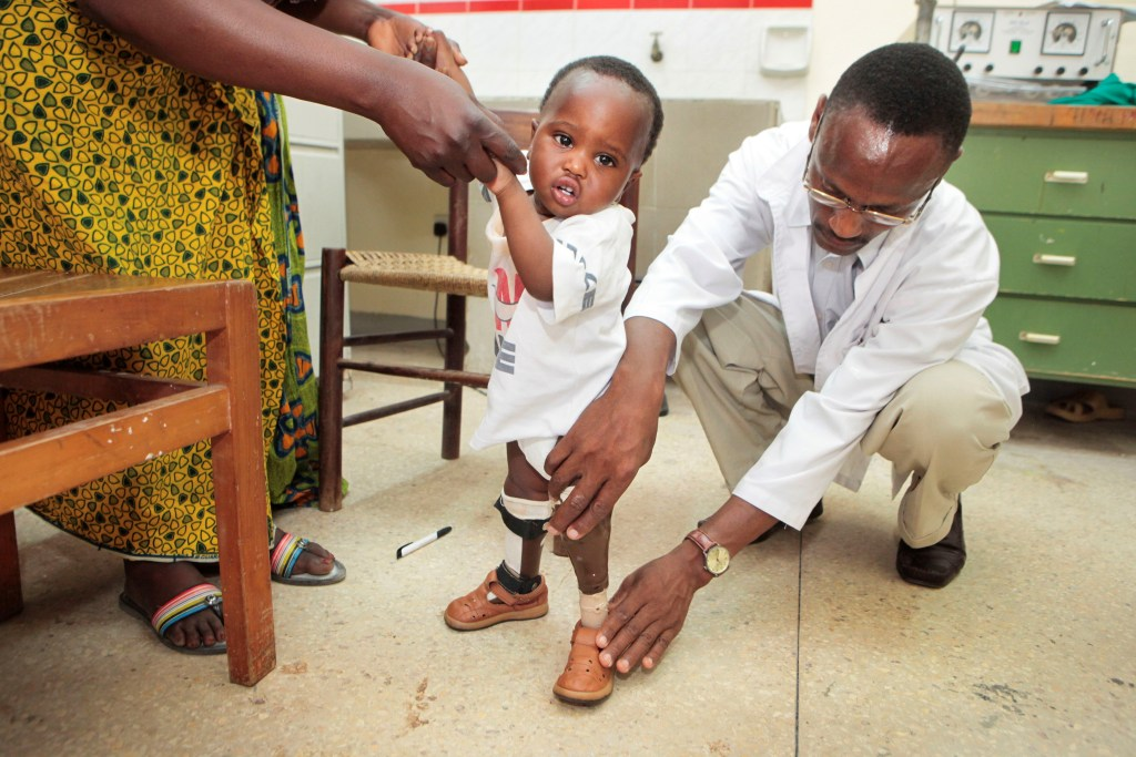 Comprehensive Community Based Rehabilitation in Tanzania: 3D-printed lower limb prostheses