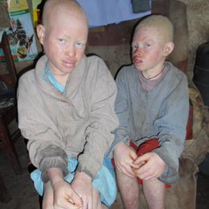 Albino-Rescue_Mary-Brian_Humanity-Healing