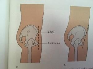 Anterior tilt in the pelvis