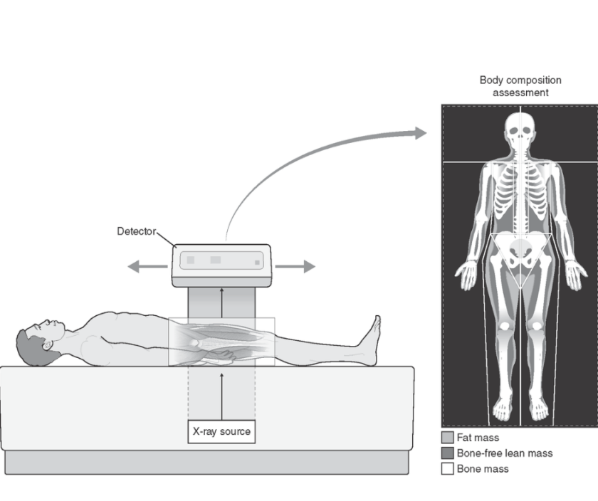 DXA body composition test (2)
