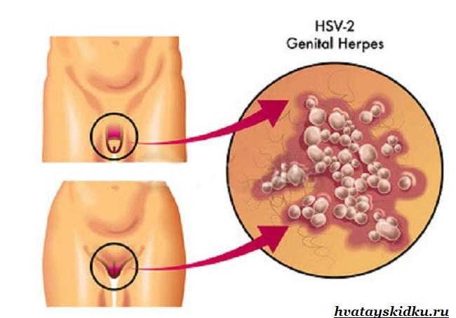 Генитальный-герпес-Лечение-генитального-герпеса-1