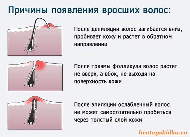 Эпиляция-Как-бороться-с-врастанием-волос-после-эпиляции-1
