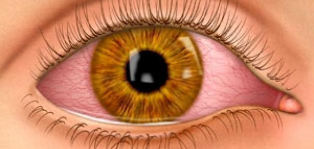 اسباب حول العين المفاجئ عند الاطفال حياتك