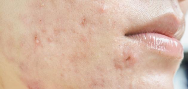 اسباب ظهور حبوب بيضاء صغيرة في الوجه