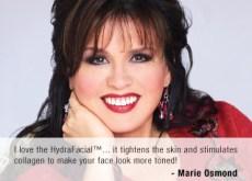 HydraFacial suosittelijat Marie Osmond