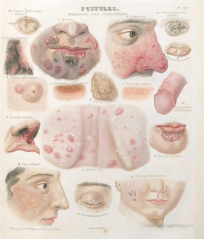 Pustulae, Treatise on the Diseases of the Skin, Rayer, 1835, plate VIII Cadbury Research Library