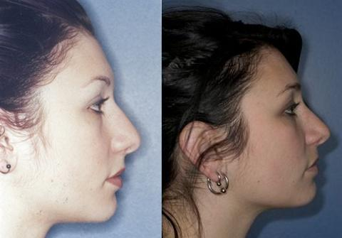 foto plastica nariz