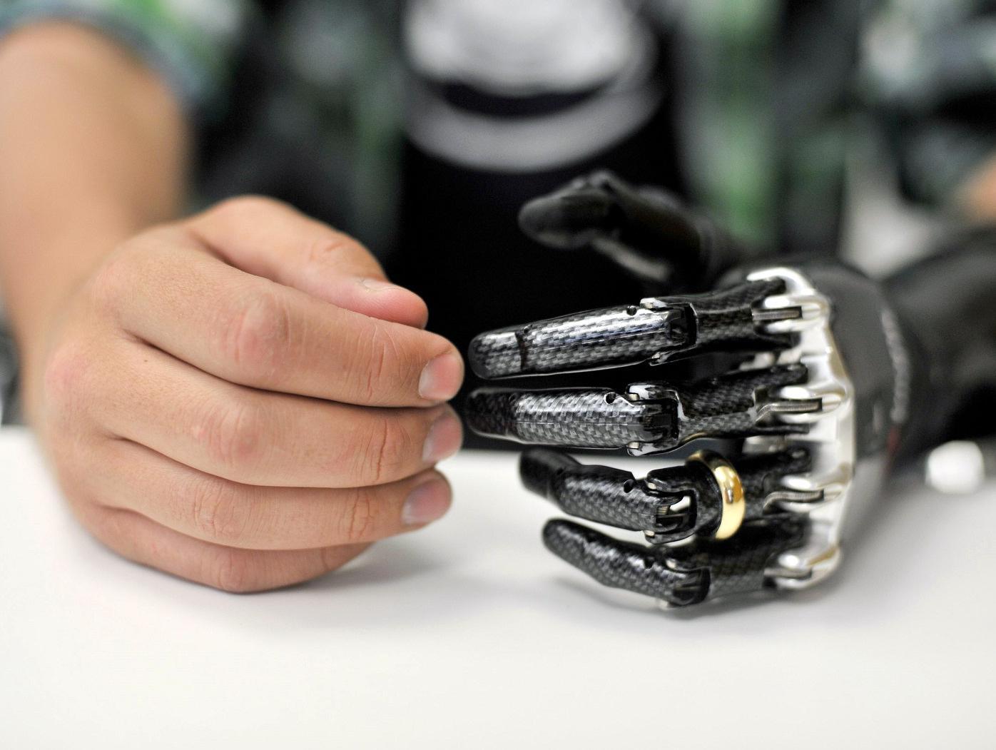 Resultado de imagen de implantes bionicos