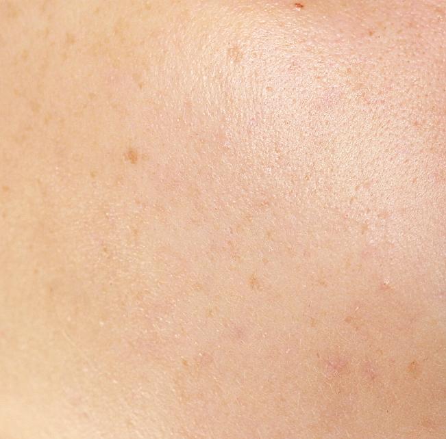 HydraFacial Erfahrungsbericht Geschichtsbehandlung gegen Akne auf Beauty Blog Frankfurt.