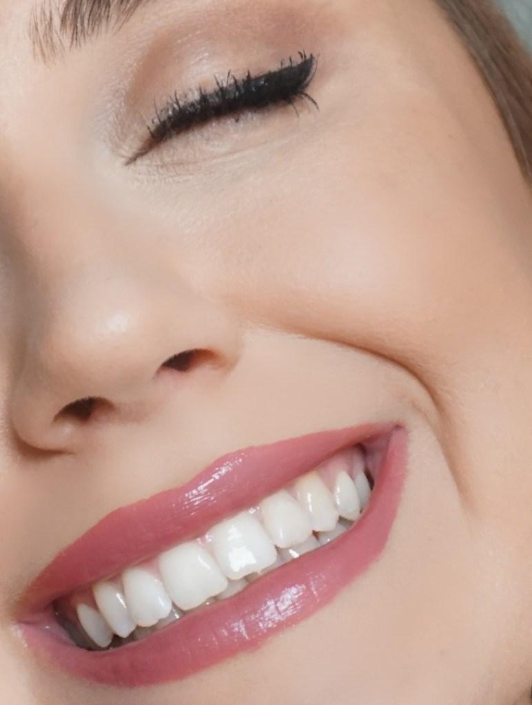 Nachher-Bild: Nach der DrSmile Behandlung ohne Zahnschiene