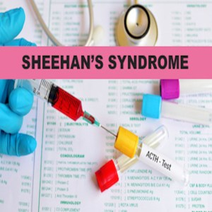 sheehans syndrome