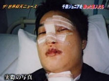手術後の千原ジュニアさん