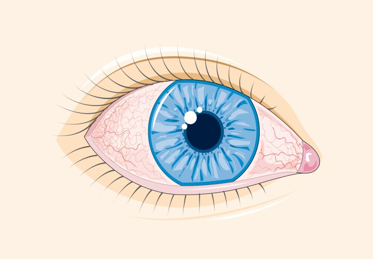 ochii rosii conjuctivita