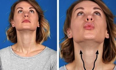 cum să pierdeți grăsimea în maxilarul dvs