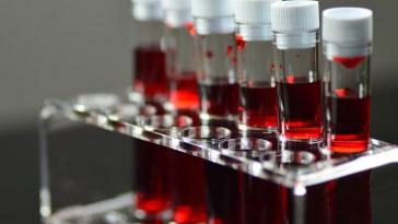 Finalement, le groupe sanguin n'impacte pas la Covid-19, selon une étude