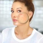 Acné rosacée : quelle est cette maladie dont souffre EnjoyPhoenix ?