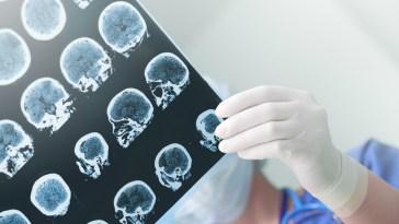 Un vaccin contre la maladie d'Alzheimer, le premier du genre, vient de passer les tests d'innocuité