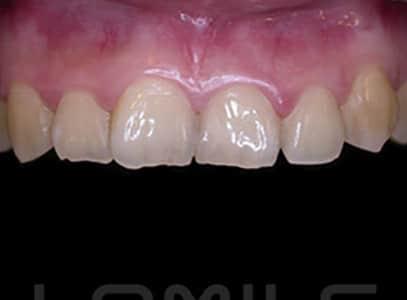 牙齒顏色比例不對