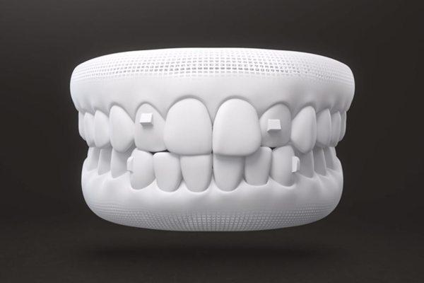 隱適美有別於傳統矯正,矯正器近乎隱形牙套