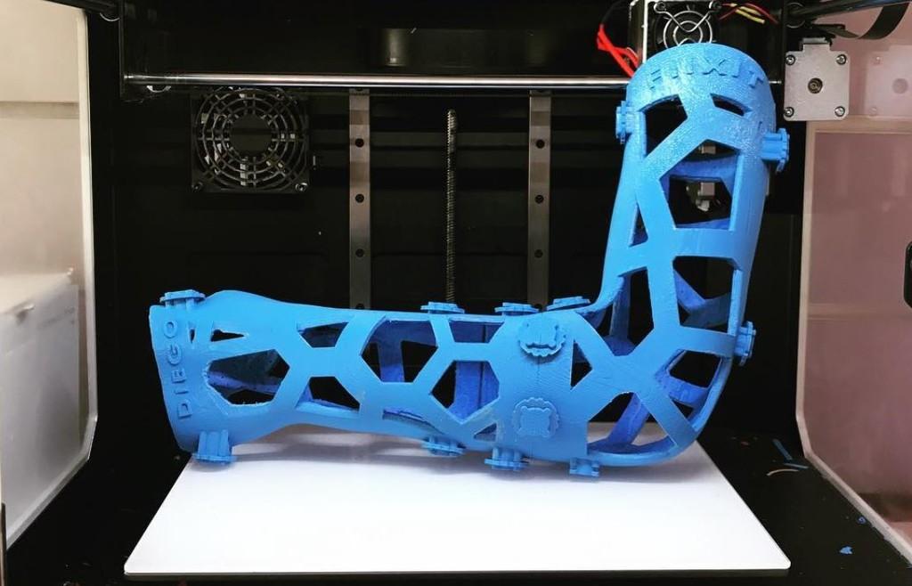 Esta empresa malagueña quiere revolucionar la traumatología con escayolas impresas en 3D