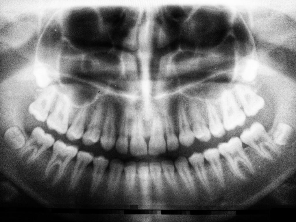 Estamos rechinando los dientes más que nunca: cómo nuestros niveles de bruxismo se han disparado