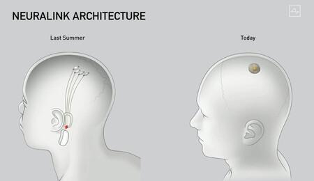Neuralink1