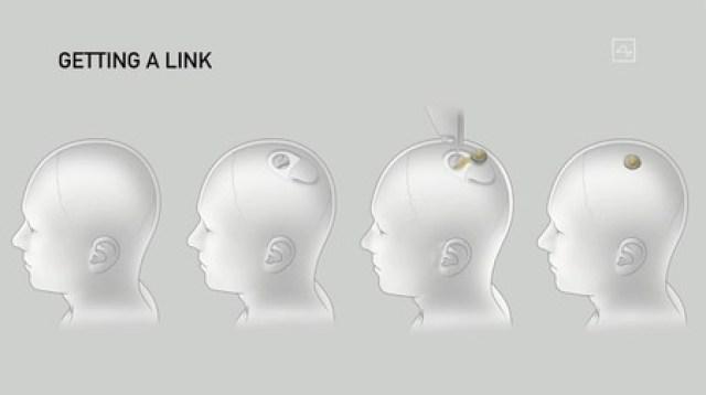 Neuralink Elon Musk Conectar Chip Cerebro Computadora