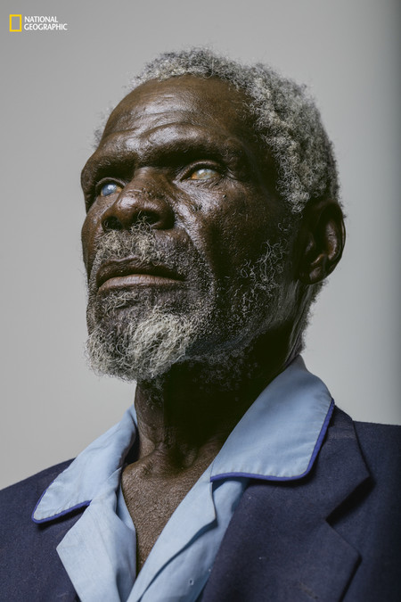 Blindness Portrait