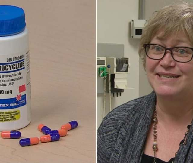 Dr Luanne Metz A Neurologist At The University Of Calgary And Lead Investigator Of The Study Says Minocycline Has Demonstrated Benefits In Reducing The