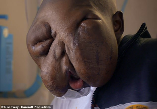 Decade struggle: He was 10 years-old when aggressive mass first appeared on his cheek