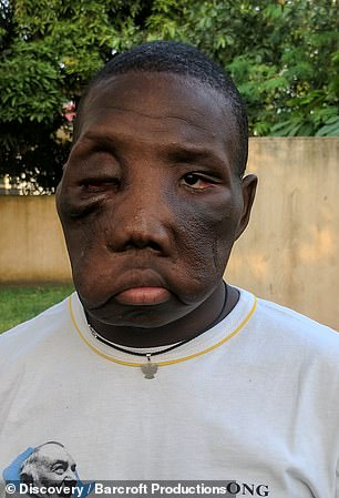 Kambou Sie, from the Ivory Coast, is barely recognisable after his life-changing surgery was successfully performed in Italy