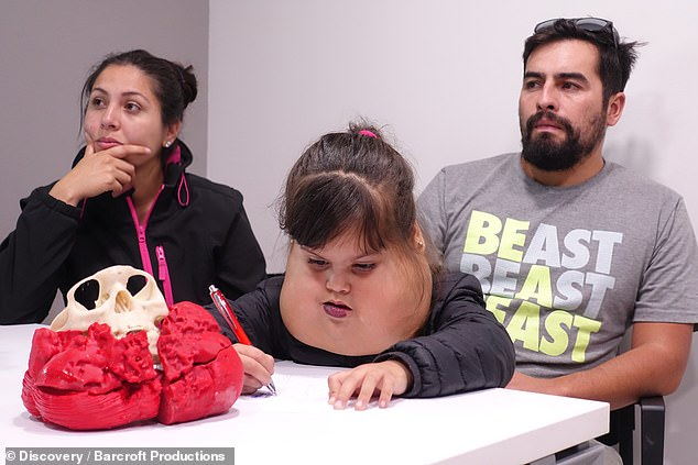 The parents of Ignacia, Danitza and Jonathan, from Chile, discovered they had the problem before they were born, but they became out of control to the point where it was affecting her breathing