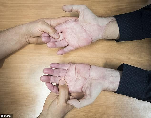 Mr King underwent the procedure to replace both his hands at the UK's specialist centre at Leeds General Infirmary
