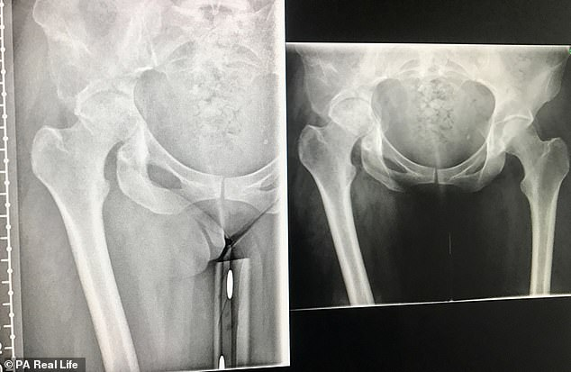 Miss Watkins' X Ray when she was first admitted to hospital, showing where her femoral head had 'pushed through' the fragile bone