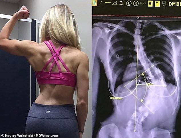 Overall, Miss Wakefield has always refused to let her condition (seen left and right seen in the X-ray) to stop, and she uses her illness as an aid to inspire other scoliosis sufferers