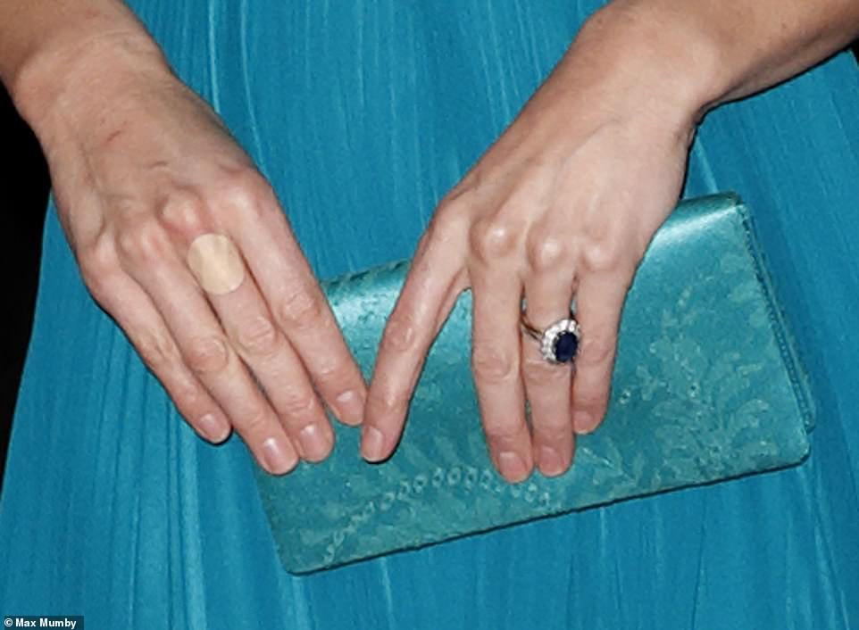 The Duchess appeared to have had a small accident wearing a small circular plaster on her middle finger