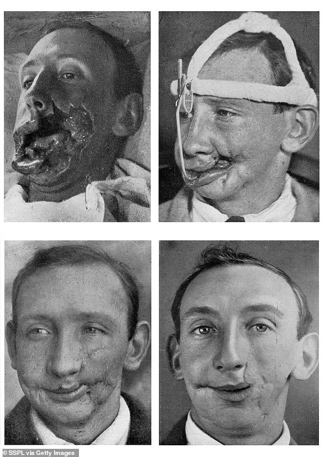 Four photographs documenting the facial reconstruction of a soldier whose cheek was heavily wounded during the Battle of the Somme in July 1916