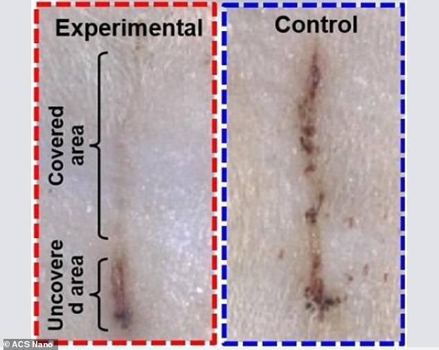 Images show the difference in wound healing between a rat wearing the e-band (left) and a control (right) after two days. This is likely due to the electric field the device generated