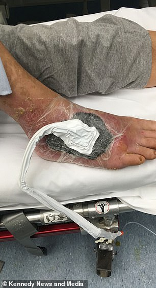 "After treatment with larvae in the UK, doctors used a ""vac pac"" (pictured) to ""suck"" his skin on the surface to close his wound deep 2 cm"