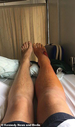 Image shows his swollen leg and foot