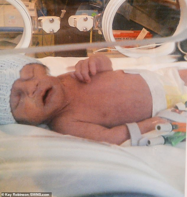 Hamish was born over five weeks premature, but appeared to be healthy apart from his weight