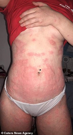 During her worst flares, she is covered with one big welt & # 39;