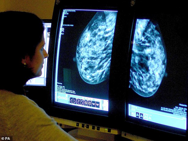 The research suggests thousands of women with a family history of breast cancer should have annual scans from the age of 35. (Stock image)