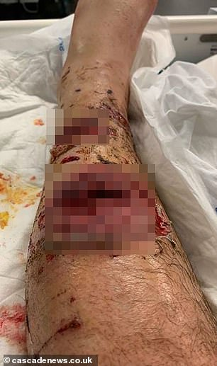 """Mr. Nicol stated that he """"thought that he could die"""" during the attack and that the pain was """"indescribable"""". In the photo, his leg injuries"""