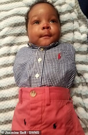 Baby RJ Wilson was born with the rare conditiontetra-amelia, which causes him not to have his arms or legs