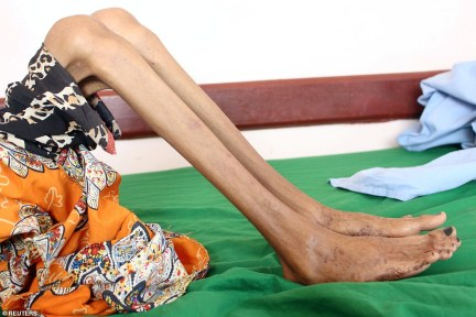 Heartbreaking: Fatima weighs about the same as a healthy toddler - 22lbs