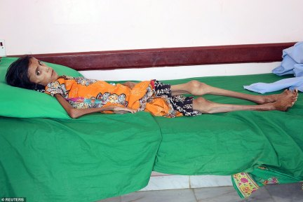 Starving: Fatima is one of ten million Yemenis brought to the brink of famine by the civil war